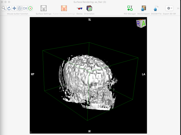 The model in OsiriX
